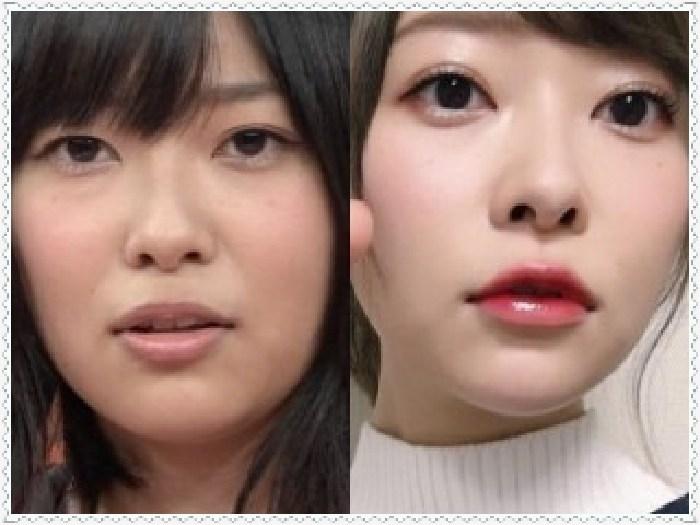 指原莉乃 昔と今 目 変わった 手術報告 鼻先 整形 写真 涙袋