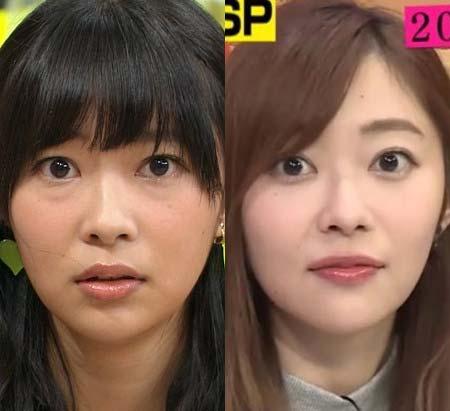 指原莉乃 昔と今 目 変わった 手術報告 鼻先 整形 写真