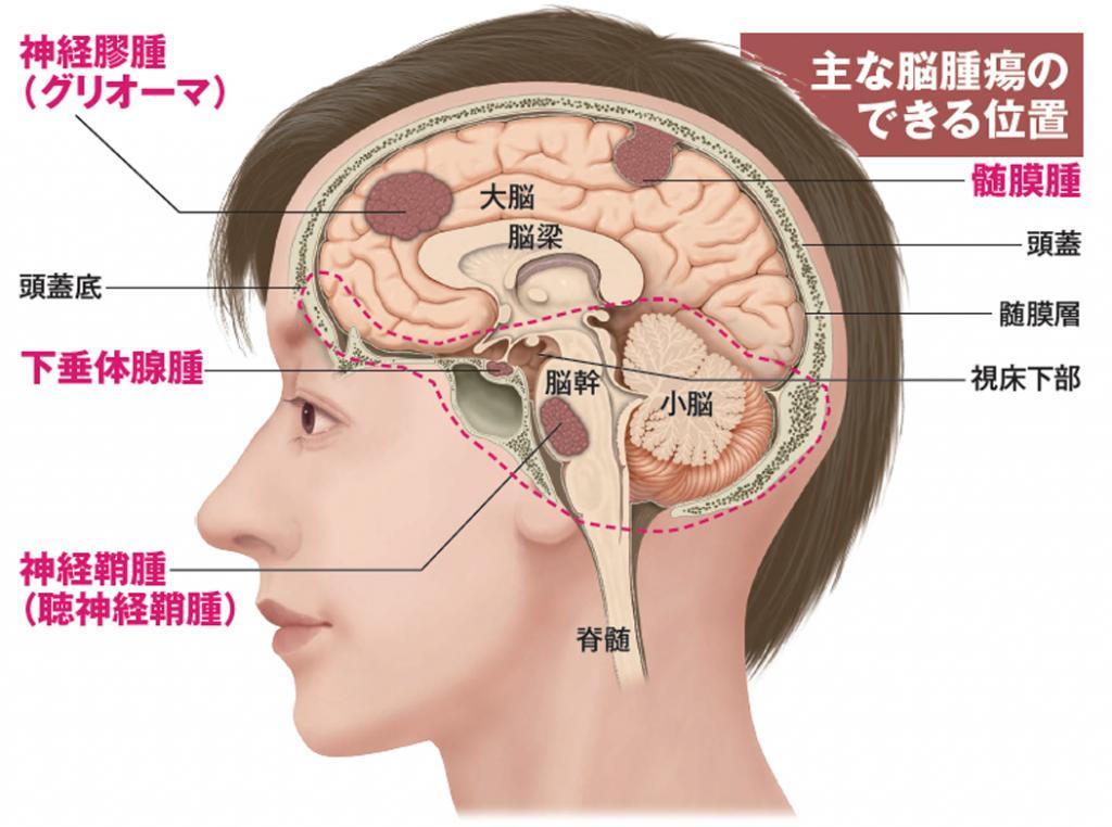 関ジャニ∞ 安田章大 脳腫瘍 髄膜腫