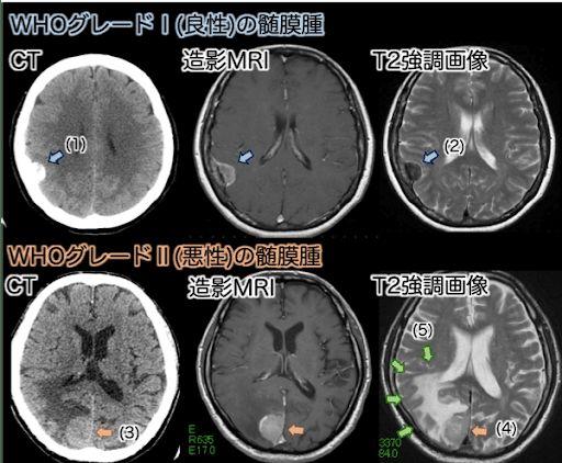 脳腫瘍 髄膜腫 CTスキャン画像